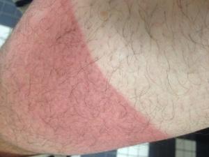 dave-masterson-sunburn-leg